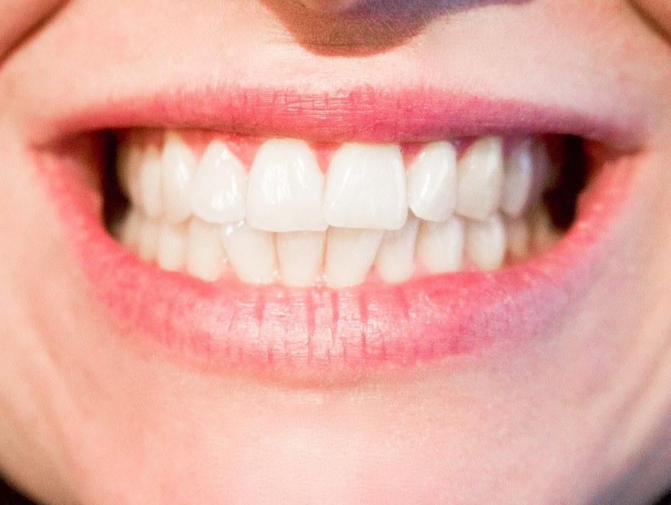 denti bianchi consigli utili da seguire