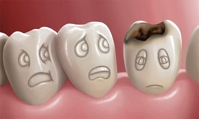 Come Capire se un Dente è Cariato?