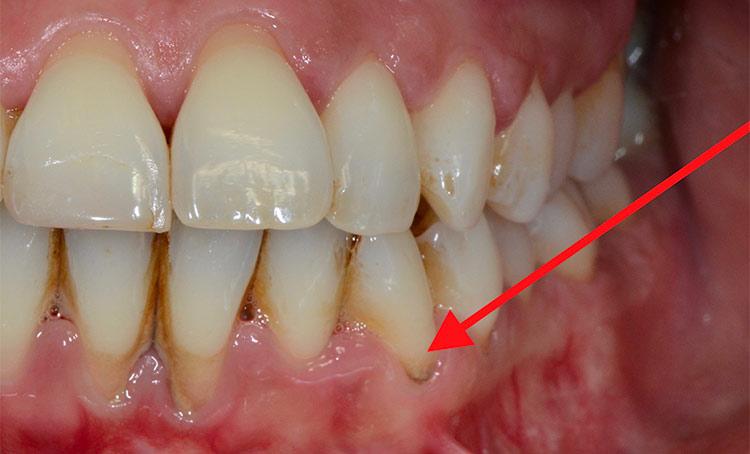Placca Dentale e Tartaro
