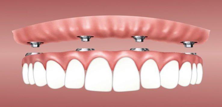 ponte-dentale